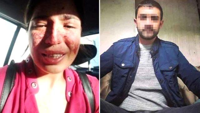 Boşandığı eşine şiddet uyguladığı iddiasıyla gözaltına alınan şahıs, serbest bırakıldı