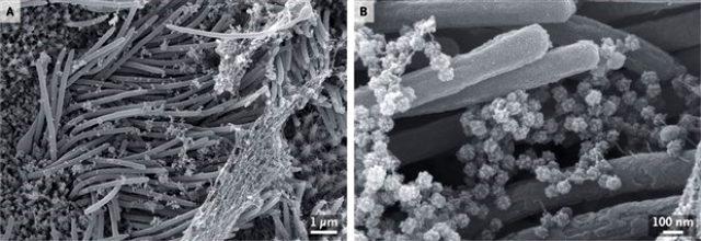 Koronavirüsün enfekte ettiği solunum yolu hücrelerinin görüntüleri tıp dergisinde yayımlandı