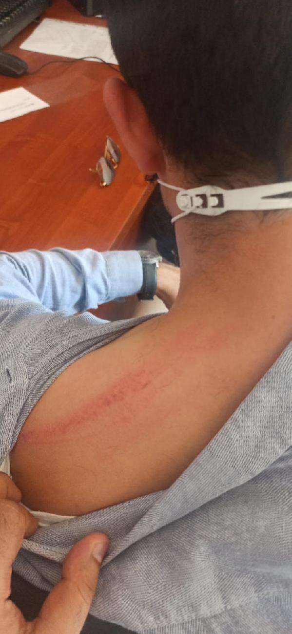 Özel hastanede icra işlemi başlatmak isteyen avukat ve icra müdürüne saldırı