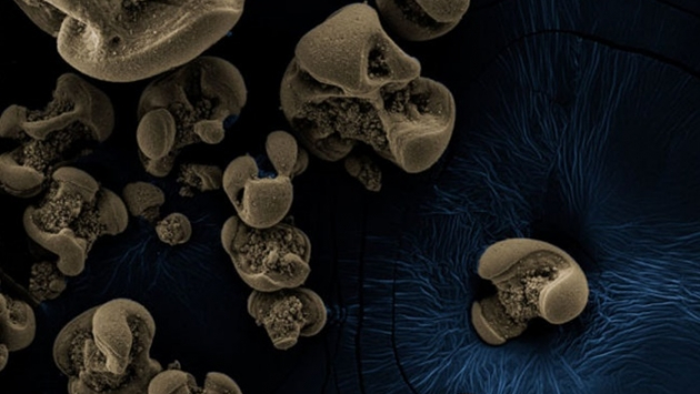Metal yiyen bakteri bulundu!